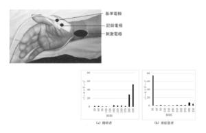 手首に電極を貼る誘発筋電により前角細胞抑制を可視化